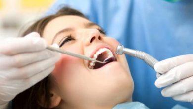 پوسیدگی دندان و ریزش مو