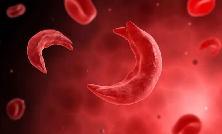 علت کم خونی چیست